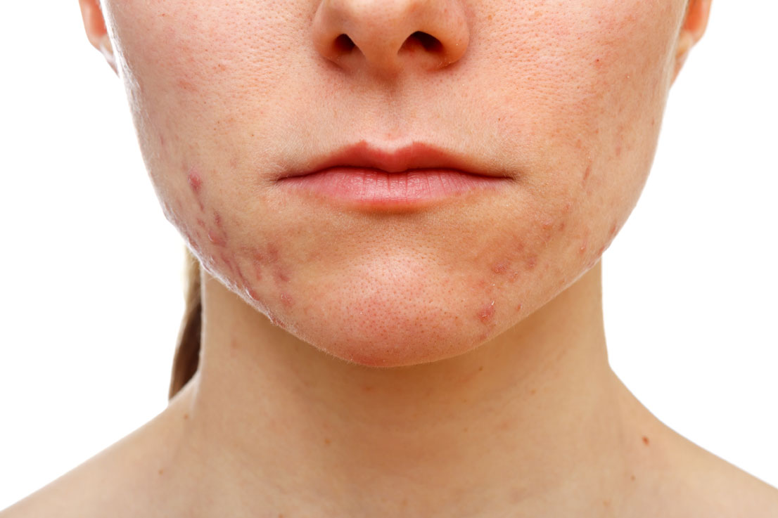acne-vulgaris[1]